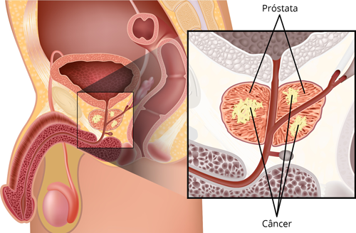 cancer-de-prostata